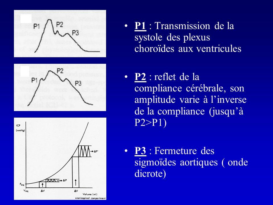 P1 : Transmission de la systole des plexus choroïdes aux ventricules P2 : reflet de la compliance cérébrale, son amplitude varie à linverse de la comp