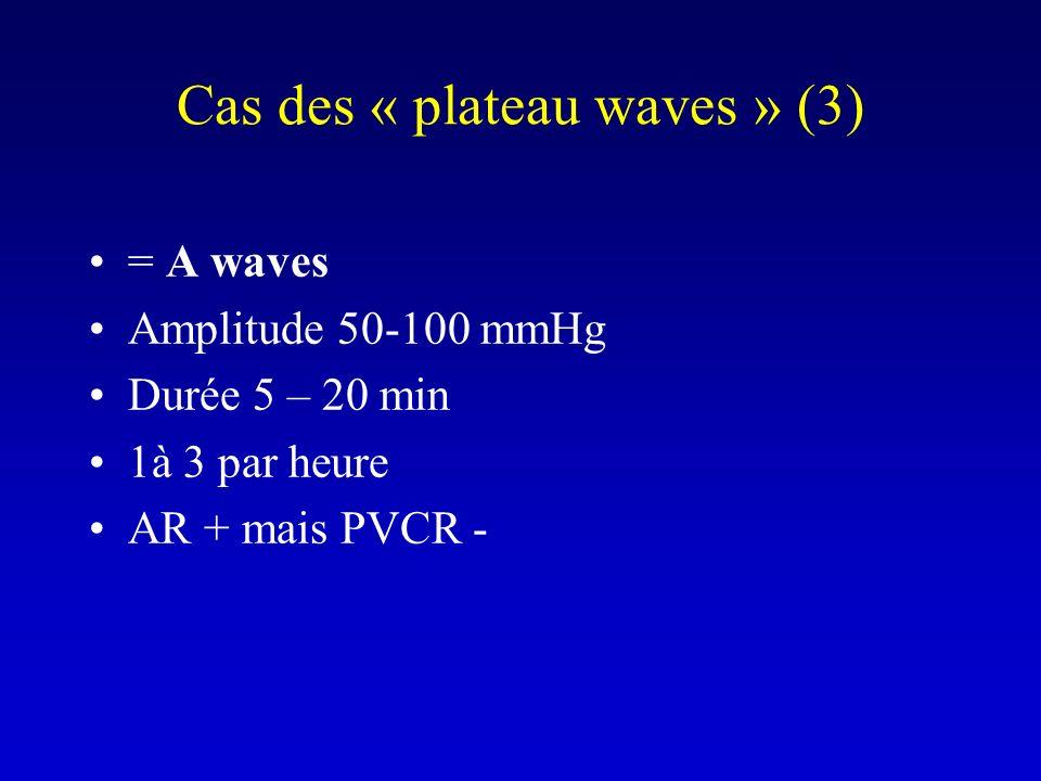 Cas des « plateau waves » (3) = A waves Amplitude 50-100 mmHg Durée 5 – 20 min 1à 3 par heure AR + mais PVCR -