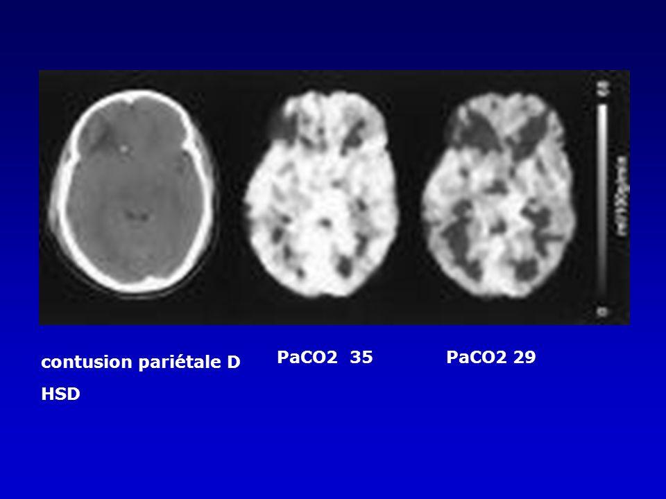 contusion pariétale D HSD PaCO2 35PaCO2 29