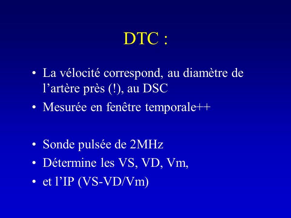 DTC : La vélocité correspond, au diamètre de lartère près (!), au DSC Mesurée en fenêtre temporale++ Sonde pulsée de 2MHz Détermine les VS, VD, Vm, et