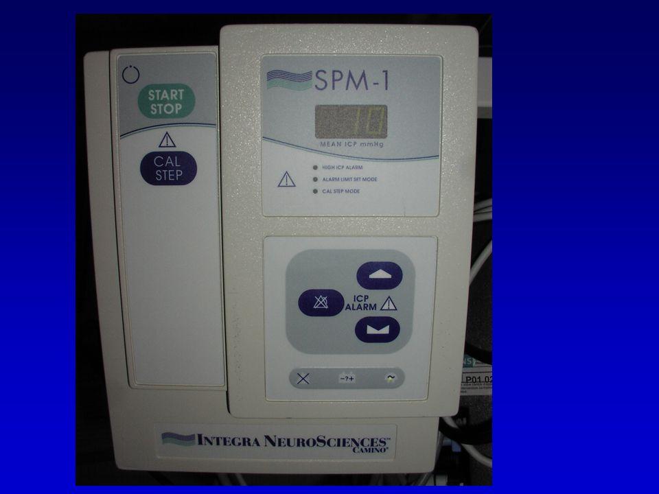 Perte dautorégulation DSC PPC (mmHg) 50150 10 - 40 % des TC : 70