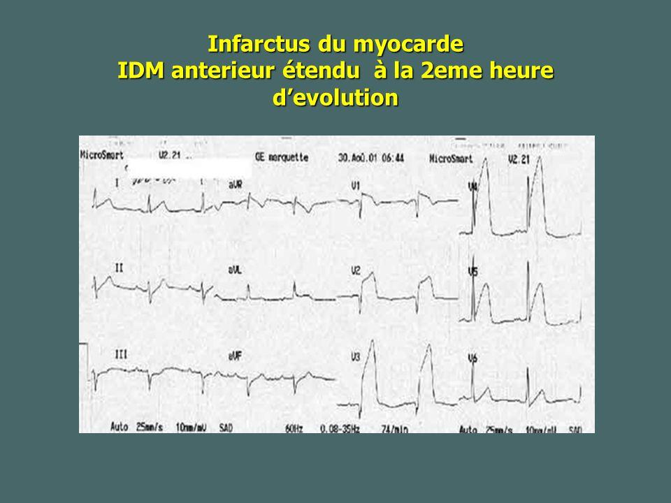 Infarctus du myocarde IDM anterieur étendu à la 2eme heure devolution