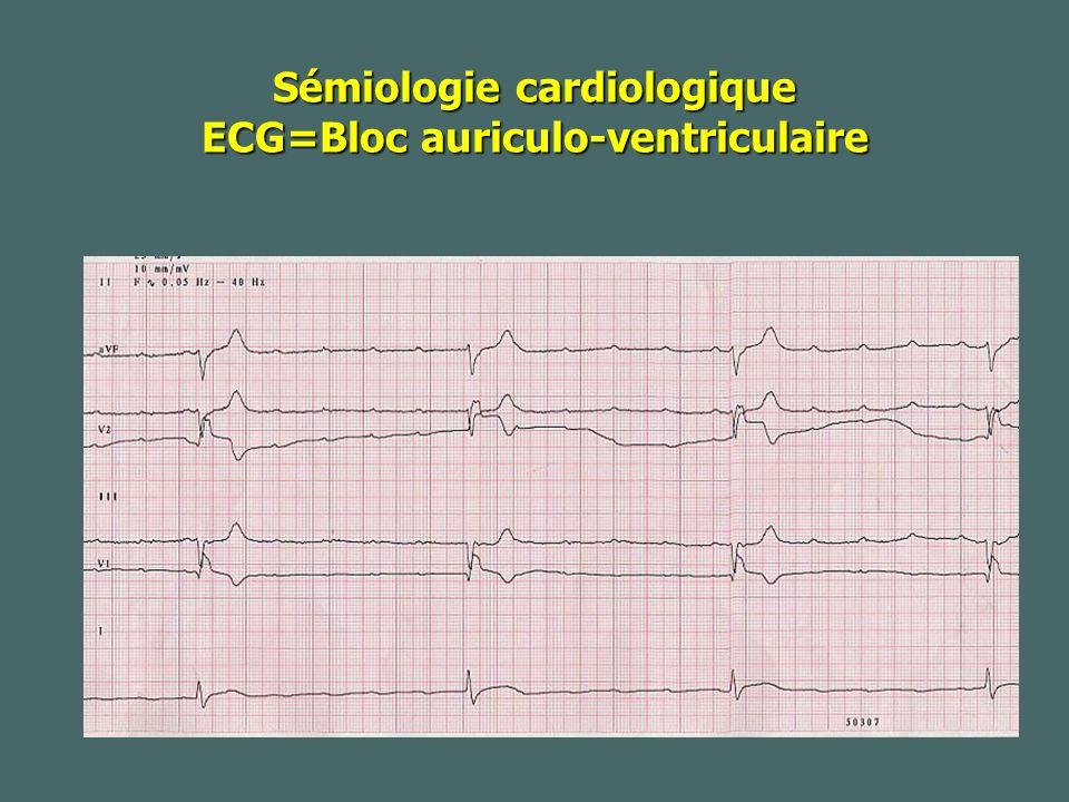 Sémiologie cardiologique ECG=Bloc auriculo-ventriculaire