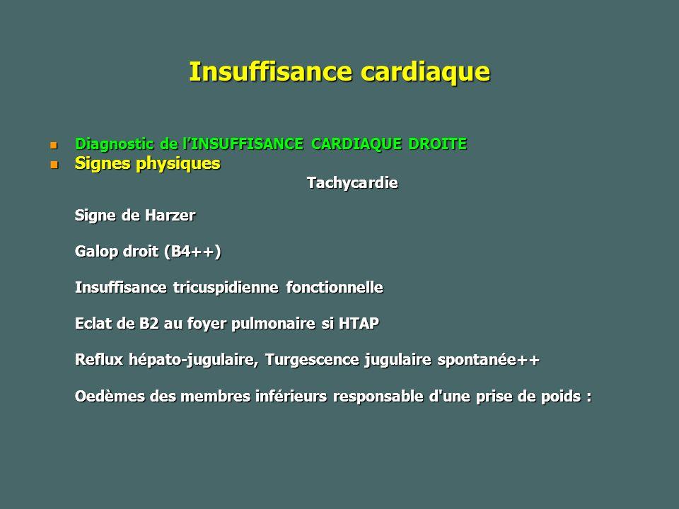 Insuffisance cardiaque Diagnostic de lINSUFFISANCE CARDIAQUE DROITE Diagnostic de lINSUFFISANCE CARDIAQUE DROITE Signes physiques Signes physiquesTachycardie Signe de Harzer Galop droit (B4++) Insuffisance tricuspidienne fonctionnelle Eclat de B2 au foyer pulmonaire si HTAP Reflux hépato-jugulaire, Turgescence jugulaire spontanée++ Oedèmes des membres inférieurs responsable d une prise de poids :