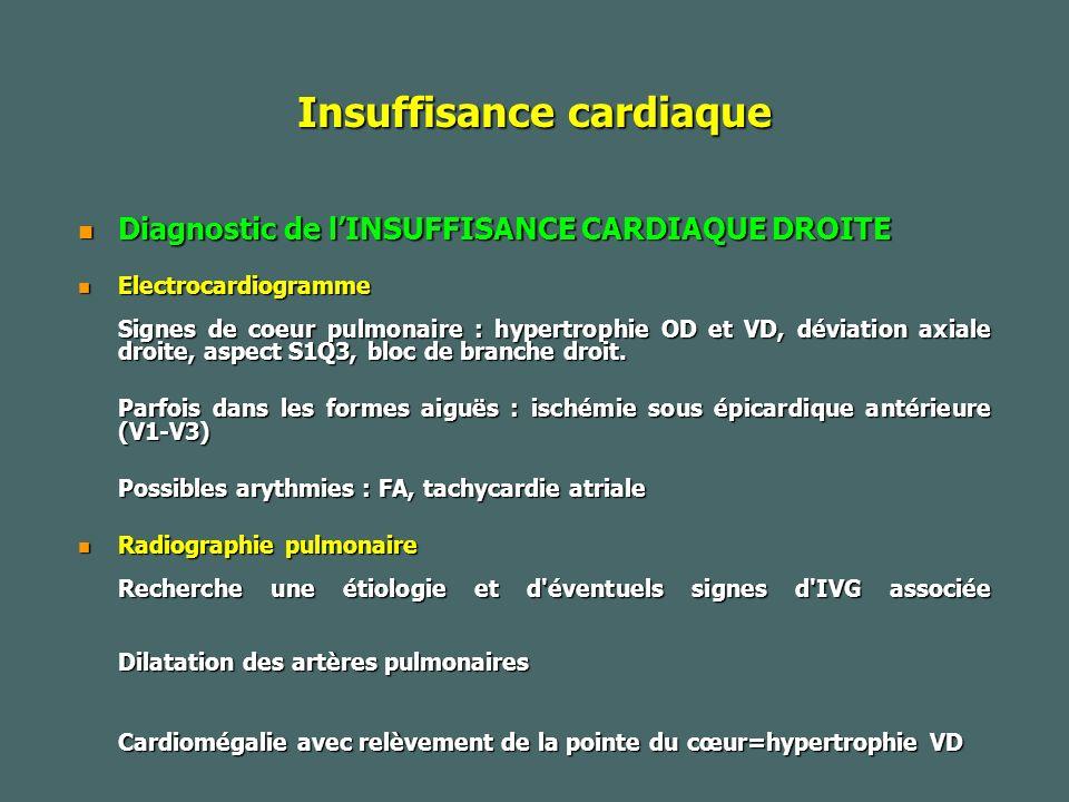 Insuffisance cardiaque Diagnostic de lINSUFFISANCE CARDIAQUE DROITE Diagnostic de lINSUFFISANCE CARDIAQUE DROITE Electrocardiogramme Electrocardiogramme Signes de coeur pulmonaire : hypertrophie OD et VD, déviation axiale droite, aspect S1Q3, bloc de branche droit.