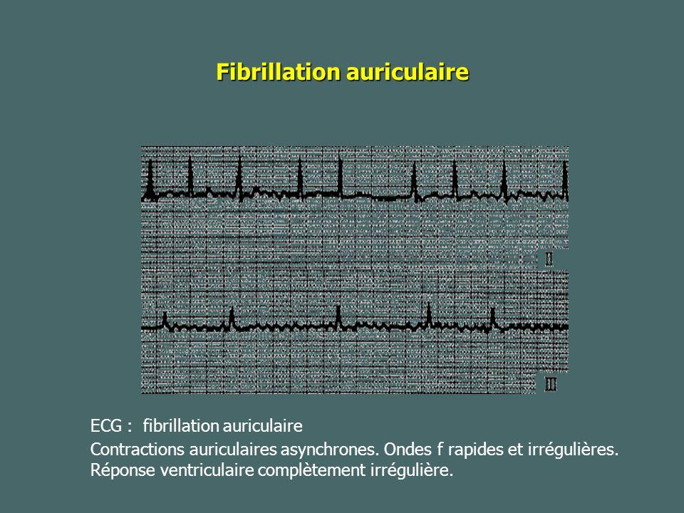 Fibrillation auriculaire ECG : fibrillation auriculaire Contractions auriculaires asynchrones.