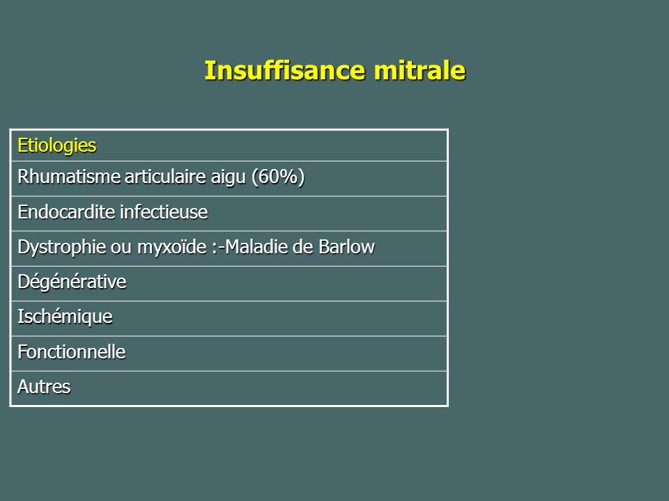 Insuffisance mitrale Etiologies Rhumatisme articulaire aigu (60%) Endocardite infectieuse Dystrophie ou myxoïde :-Maladie de Barlow Dégénérative Ischémique Fonctionnelle Autres