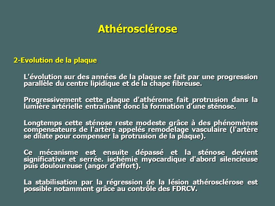 Athérosclérose 2-Evolution de la plaque L évolution sur des années de la plaque se fait par une progression parallèle du centre lipidique et de la chape fibreuse.
