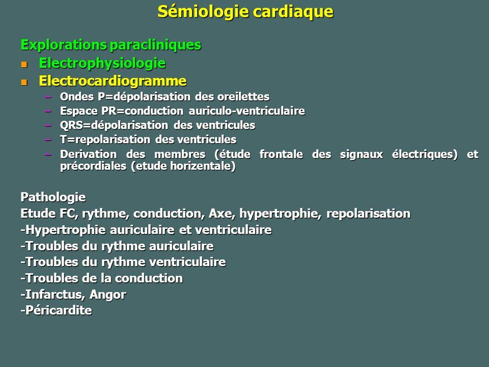 Fibrillation auriculaire Les circonstances du diagnostic peuvent être : Les circonstances du diagnostic peuvent être : -un examen systématique (découverte fortuite) -à l occasion d une asthénie, de lipothymies ou de palpitations -à l occasion d une asthénie, de lipothymies ou de palpitations -des signes d insuffisance cardiaque (dyspnée) ou d angor -enfin d une complication embolique.