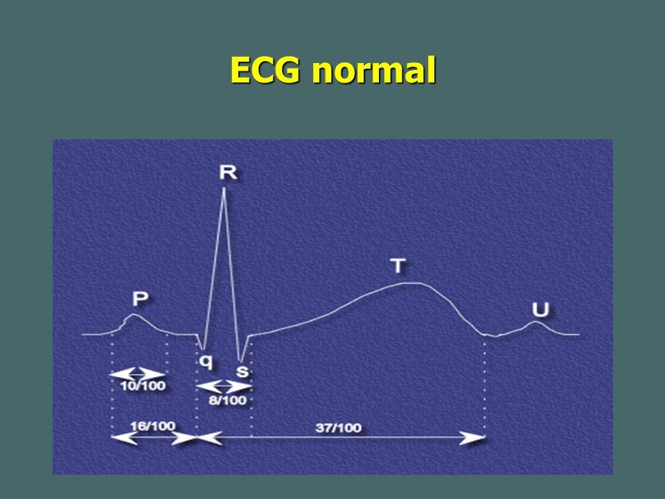 Infarctus du myocarde 5-Diagnostic différentiel+++ 5-Diagnostic différentiel+++ *La péricardite -la douleur est augmentée à l inspiration profonde -diminution par la position assise -irradiation postérieure -il existe assez souvent un frottement péricardique -la fièvre est contemporaine de la douleur Les anomalies de la repolarisation n ont pas de topographie systématisée sur les ECG; il n y pas d image en miroir .