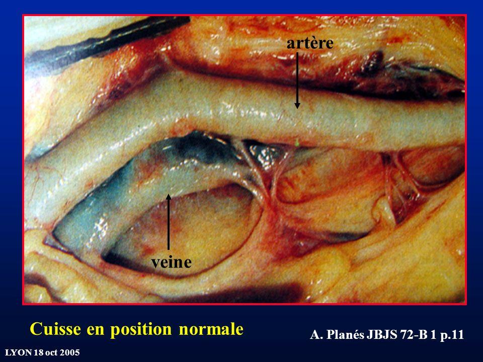 LYON 18 oct 2005 A. Planés JBJS 72-B 1 p.11 artère veine Cuisse en position normale