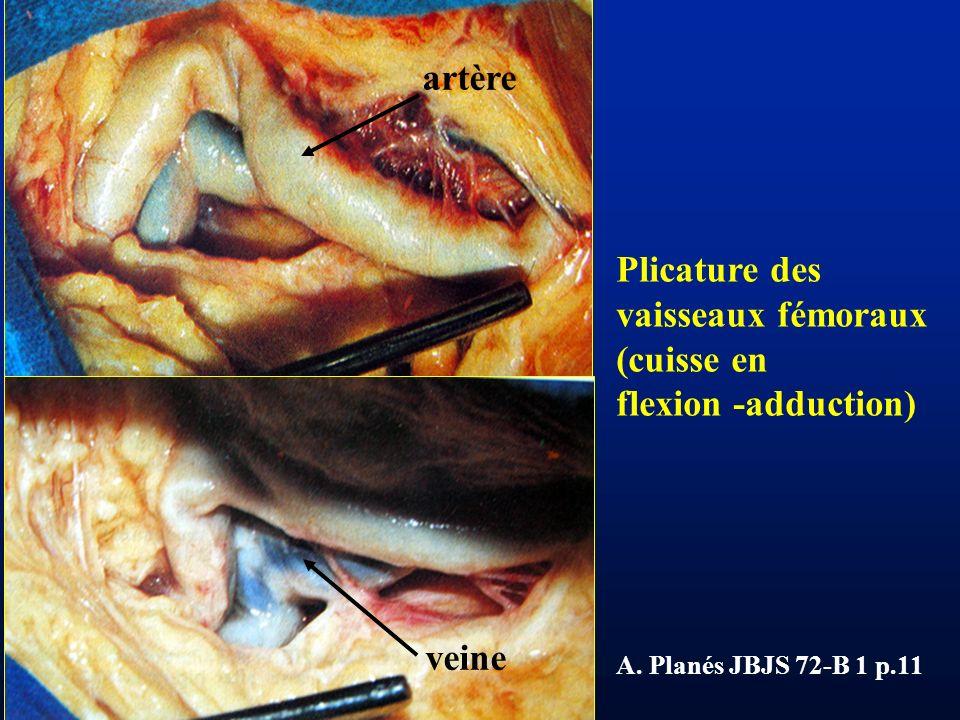 LYON 18 oct 2005 Plicature des vaisseaux fémoraux (cuisse en flexion -adduction) A. Planés JBJS 72-B 1 p.11 artère veine