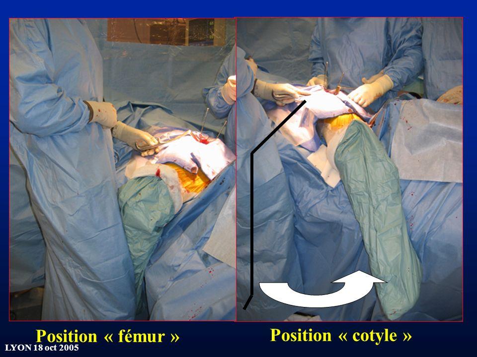 LYON 18 oct 2005 Position « fémur » Position « cotyle »