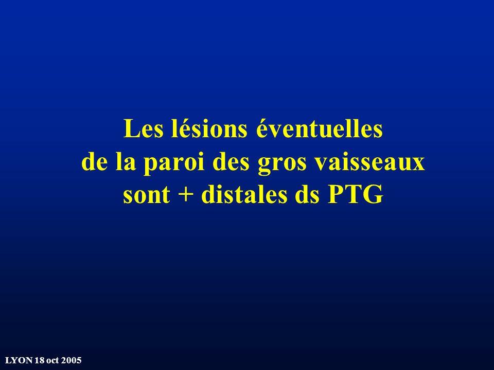 LYON 18 oct 2005 Les lésions éventuelles de la paroi des gros vaisseaux sont + distales ds PTG