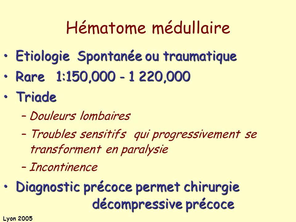 Lyon 2005 Etiologie Spontanée ou traumatiqueEtiologie Spontanée ou traumatique Rare 1:150,000 - 1 220,000Rare 1:150,000 - 1 220,000 TriadeTriade –Doul