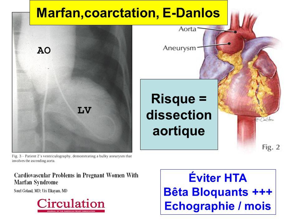 Éviter HTA Bêta Bloquants +++ Echographie / mois Marfan,coarctation, E-Danlos Risque = dissection aortique