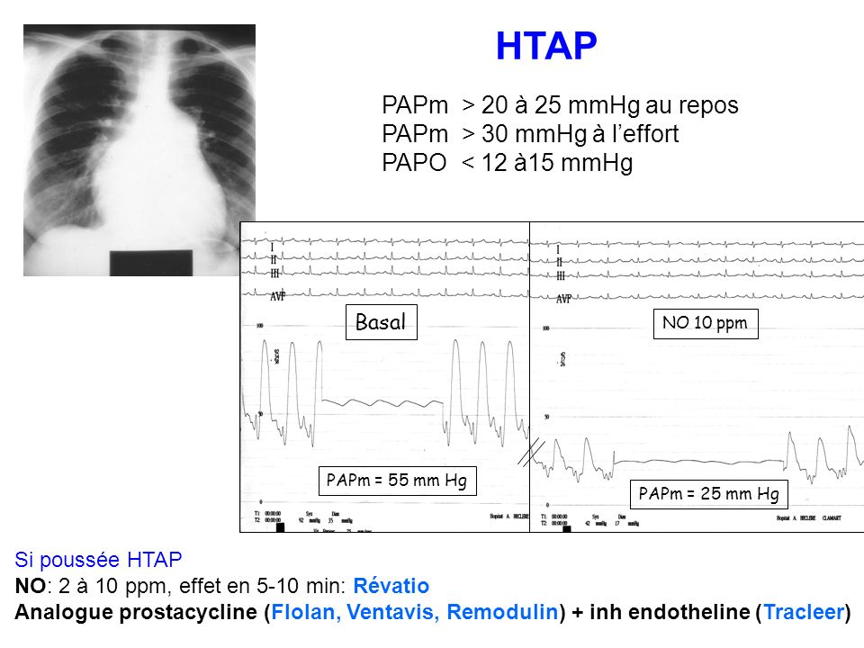 HTAP Basal NO 10 ppm PAPm = 55 mm Hg PAPm = 25 mm Hg PAPm > 20 à 25 mmHg au repos PAPm > 30 mmHg à leffort PAPO < 12 à15 mmHg Si poussée HTAP NO: 2 à