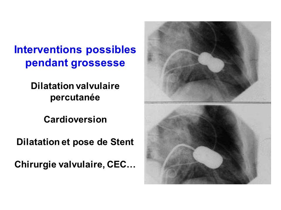 Interventions possibles pendant grossesse Dilatation valvulaire percutanée Cardioversion Dilatation et pose de Stent Chirurgie valvulaire, CEC…