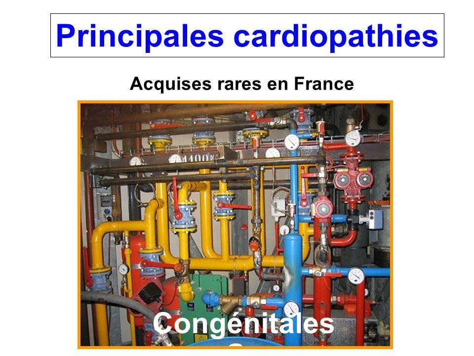 Principales cardiopathies Acquises rares en France Congénitales