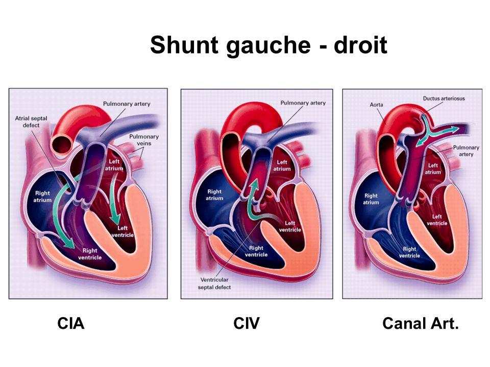 Shunt Droit Gauche Cardiopathies cyanogènes Eisenmenger Fallot Pression Volémie