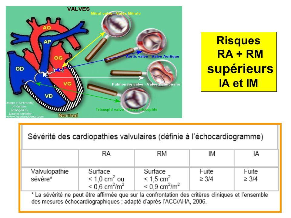 Cardiopathies avec cyanose SaO2 < 85/90%, Insuffisance cardiaque congestive sévère (NHYA IV), orthopnée Un infarctus récent, Un syndrome de Marfan avec dilatation aortique > 40 mm Sténoses mitrale ou aortique serrées Raisons obstétricales (macrosomie, présentation…) ++++ Indications de césarienne (souvent vers 32 SA) SIU et al: 657 cardiopathies, seulement 4 césar programmée pour pb cardiaques 1 pour Marfan / 14 cas 2 pour RM / 65 cas 1 pour Mustard / 23 cas 1 pour MCO / 34 cas Toutes les autres césariennes (n = 187) pour des raisons obstétricales Bonnin et al: HTAP 9 césariennes: 4 AG et 5 périmedullaires 4 AVB sous périmedullaires Dans la série, 5 étaient NYHA classe III-IV: 3 césar + 2 AVB IJOA septembre 2009 Six RA sévères (0.5 à 0.8 cm2) 3 AVB sous APD 3 césariennes: 2 sous AG et une sous APD