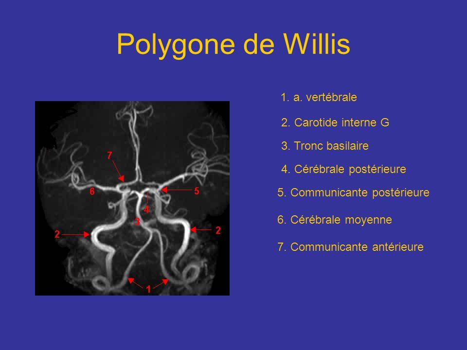 1. a. vertébrale 2. Carotide interne G 3. Tronc basilaire 4. Cérébrale postérieure 5. Communicante postérieure 6. Cérébrale moyenne 7. Communicante an