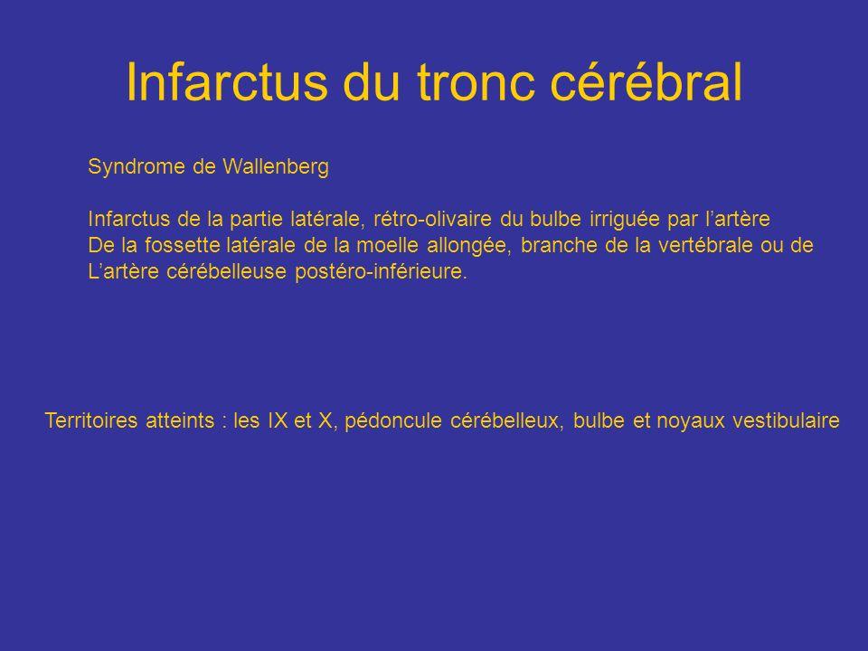 Infarctus du tronc cérébral Territoires atteints : les IX et X, pédoncule cérébelleux, bulbe et noyaux vestibulaire Syndrome de Wallenberg Infarctus d