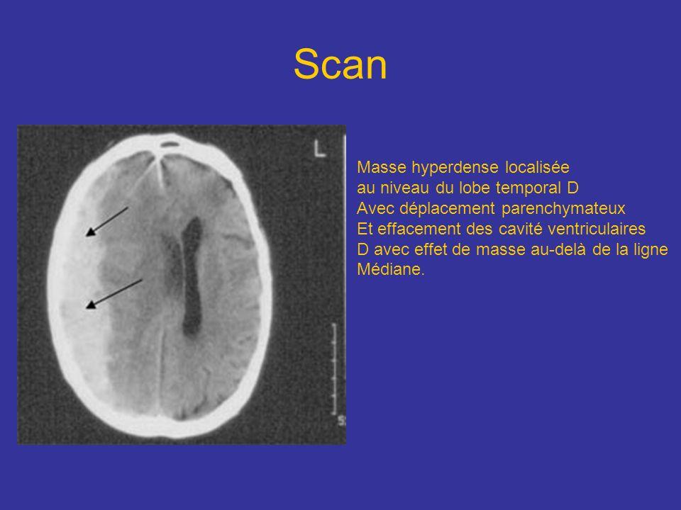 Scan Masse hyperdense localisée au niveau du lobe temporal D Avec déplacement parenchymateux Et effacement des cavité ventriculaires D avec effet de m