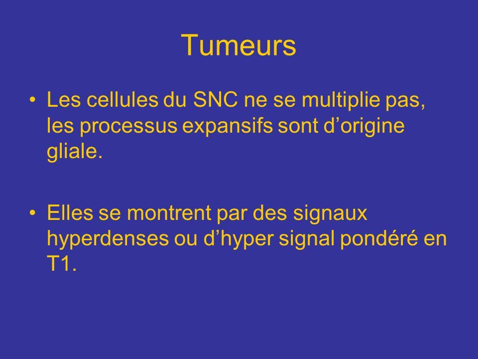 Tumeurs Les cellules du SNC ne se multiplie pas, les processus expansifs sont dorigine gliale. Elles se montrent par des signaux hyperdenses ou dhyper