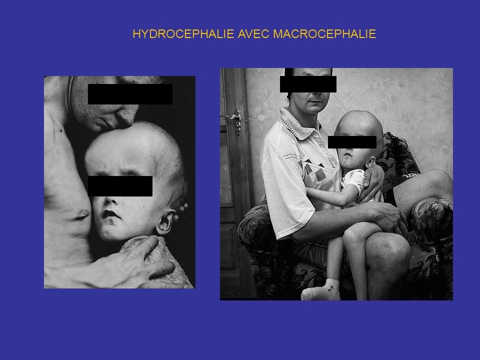 HYDROCEPHALIE AVEC MACROCEPHALIE