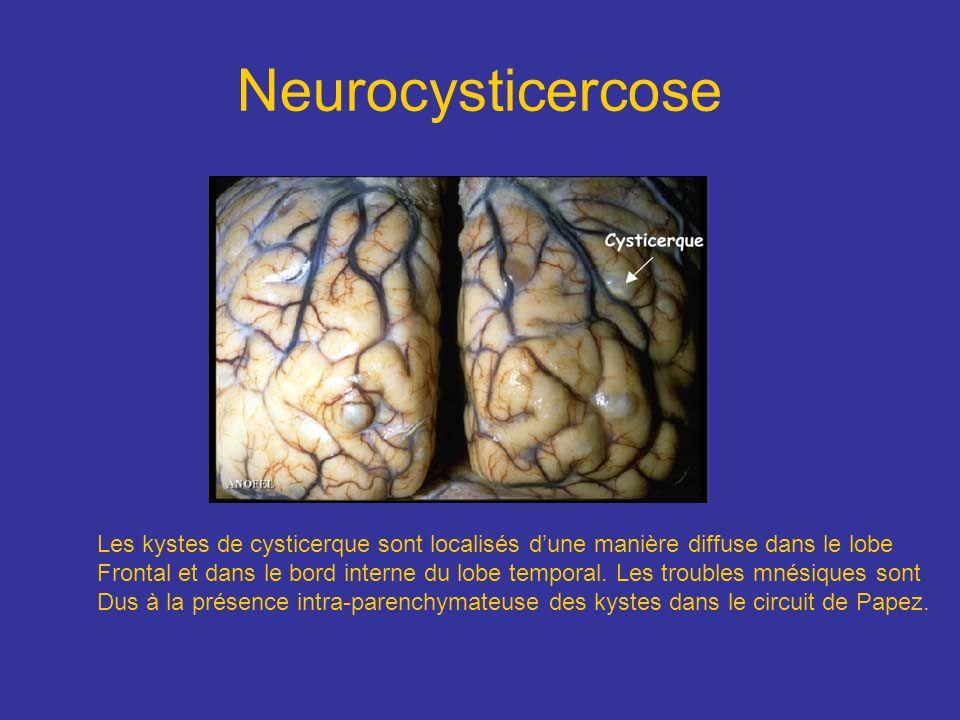 Neurocysticercose Les kystes de cysticerque sont localisés dune manière diffuse dans le lobe Frontal et dans le bord interne du lobe temporal. Les tro
