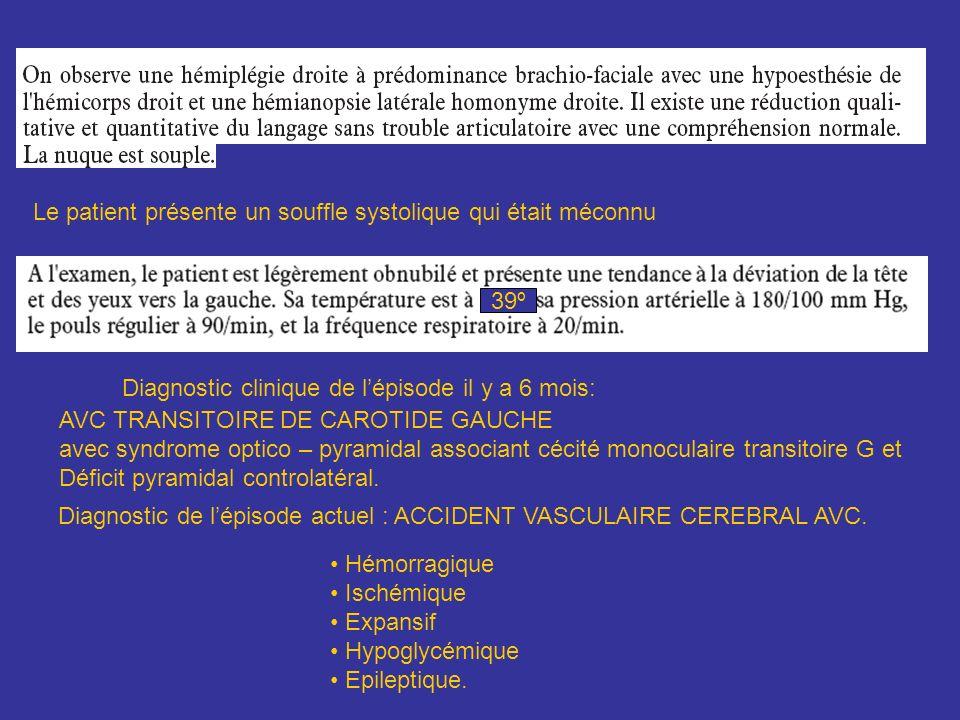 AVC TRANSITOIRE DE CAROTIDE GAUCHE avec syndrome optico – pyramidal associant cécité monoculaire transitoire G et Déficit pyramidal controlatéral. Dia