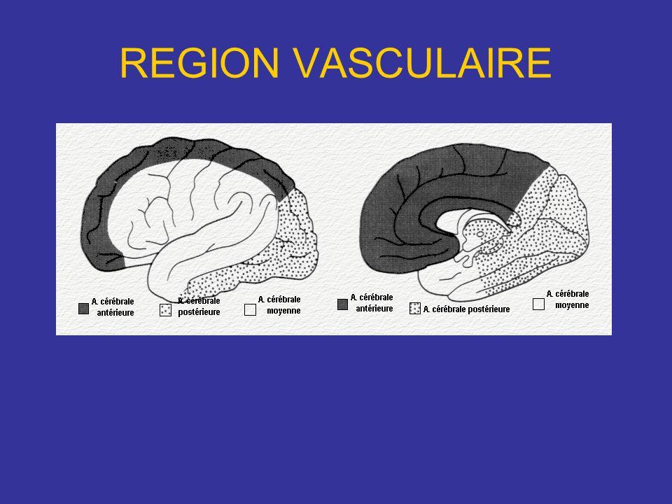 Les Infarctus Patient de 54 ans se présente aux urgences pour troubles neurologiques.