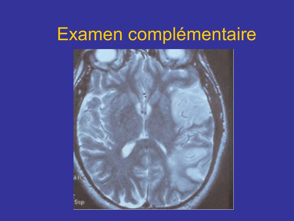 Circuit de PAPEZ 1.Corps mamillaires 2.Noyau antérieur du thalamus 3.Capsule interne 4.Gyrus cingulaire 5.Gyrus para sagittal 6.Para hippocampe et amygdale 7.Hippocampe 8.Fimbria 9.Fornix 1-9-1