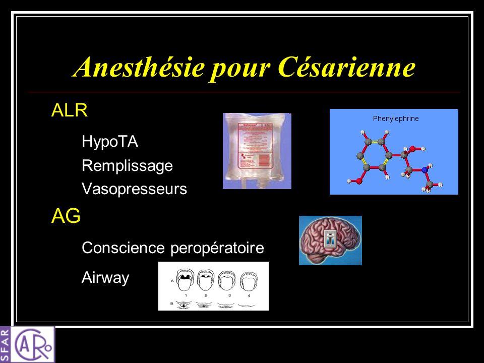 Anesthésie pour Césarienne ALR HypoTA Remplissage Vasopresseurs AG Conscience peropératoire Airway