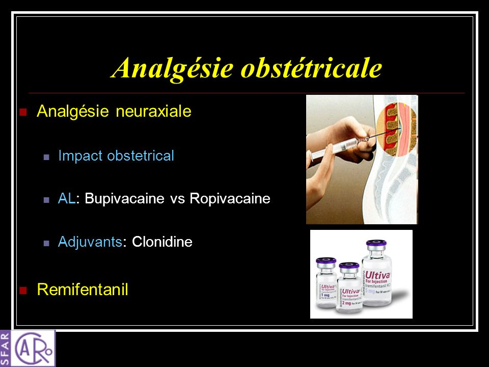 Analgésie obstétricale Analgésie neuraxiale Impact obstetrical AL: Bupivacaine vs Ropivacaine Adjuvants: Clonidine Remifentanil