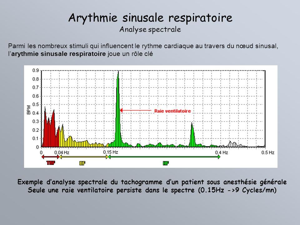 Arythmie sinusale respiratoire Analyse spectrale Parmi les nombreux stimuli qui influencent le rythme cardiaque au travers du nœud sinusal, larythmie