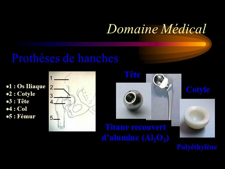 Domaine Médical 1 : Os Iliaque 2 : Cotyle 3 : Tête 4 : Col 5 : Fémur Prothèses de hanches Tête Cotyle Polyéthylène Titane recouvert dalumine (Al 2 O 3 )