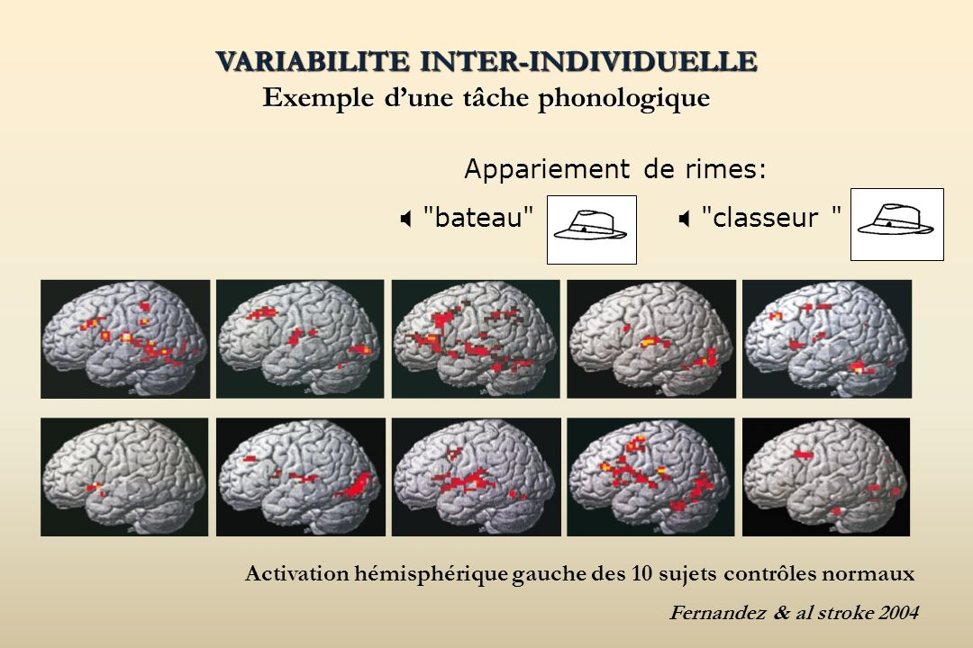 VARIABILITE INTER-INDIVIDUELLE Exemple dune tâche phonologique VARIABILITE INTER-INDIVIDUELLE Exemple dune tâche phonologique Appariement de rimes:
