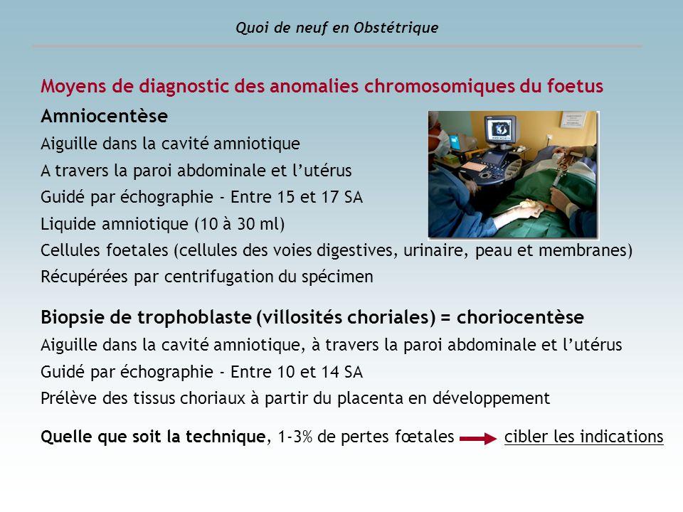Dépistage des anomalies chromosomiques Avant : dépistage séquentiel intégré du deuxième trimestre La décision de réaliser une amniocentèse reposait sur : - age, poids, taille, tabac, origine - échographie (12SA) : clarté nucale + LCC - dosages hormonaux (14 +0j à 18 SA +6j) * sous unité béta libre de lhCG * hCG totale * AFP * estriol non conjugué Quoi de neuf en Obstétrique Calcul du risque « intégré » (logiciel dévaluation du risque) Biopsie de trophoblaste ou Amniocentèse > 1/250