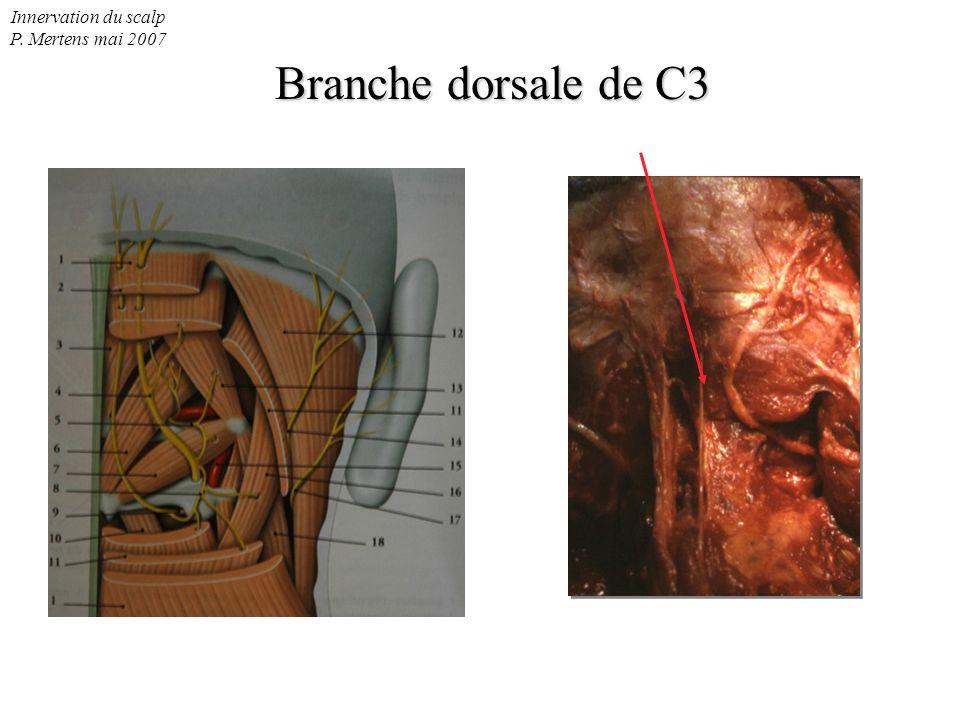 Innervation du scalp P. Mertens mai 2007 Branche dorsale de C3 Branche dorsale de C3