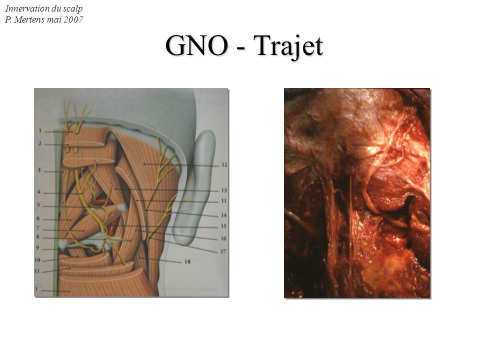 Innervation du scalp P. Mertens mai 2007 GNO - Emergence aponévrotique GNO Art occipitale