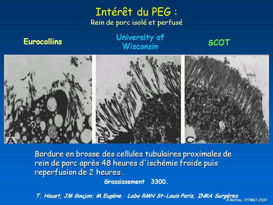B Barrou, EFPMO 2010 Intérêt du PEG : Rein de porc isolé et perfusé Grossissement 3300. T. Hauet, JM Goujon; M.Eugène. Labo RMN St-Louis Paris, INRA S