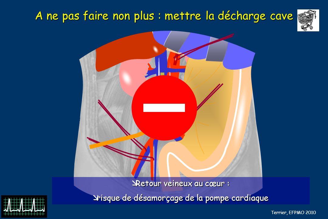 B Barrou, N Terrier, EFPMO 2010 A ne pas faire non plus : mettre la décharge cave Retour veineux au cœur : Retour veineux au cœur : risque de désamorç