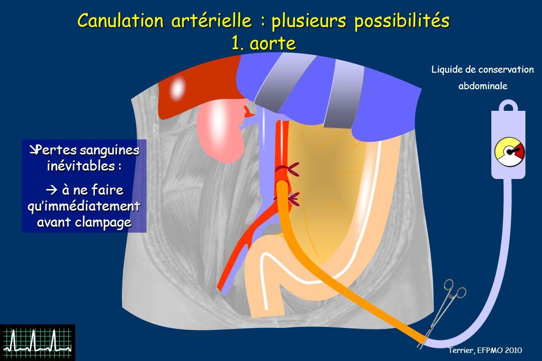 B Barrou, N Terrier, EFPMO 2010 Canulation artérielle : plusieurs possibilités 1. aorte Liquide de conservation abdominale Pertes sanguines inévitable