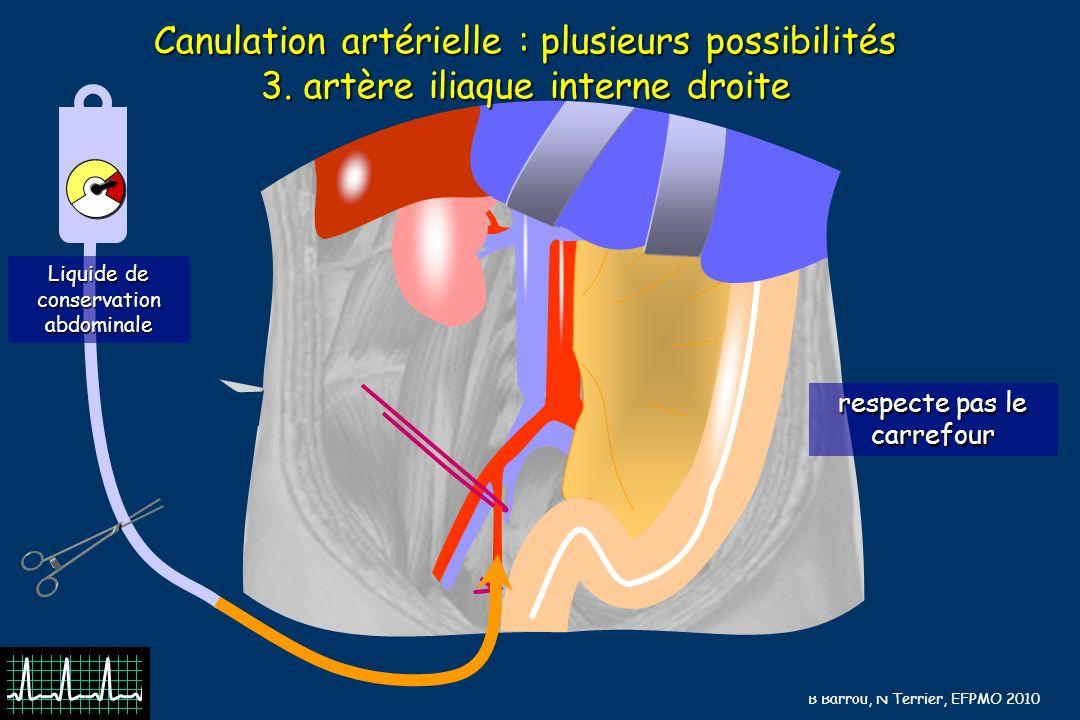 B Barrou, N Terrier, EFPMO 2010 Canulation artérielle : plusieurs possibilités 3.