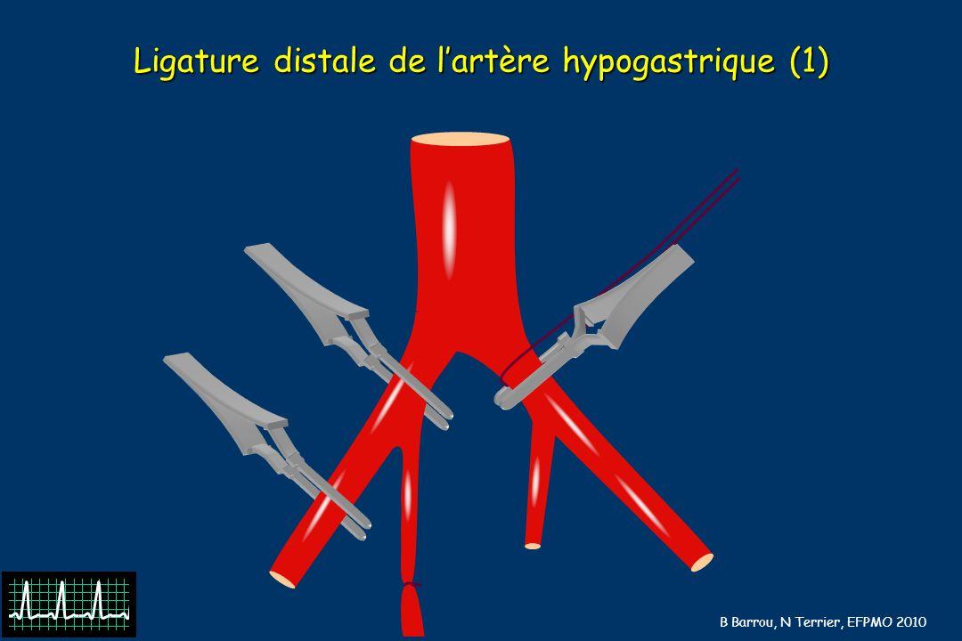 B Barrou, N Terrier, EFPMO 2010 Ligature distale de lartère hypogastrique (1)
