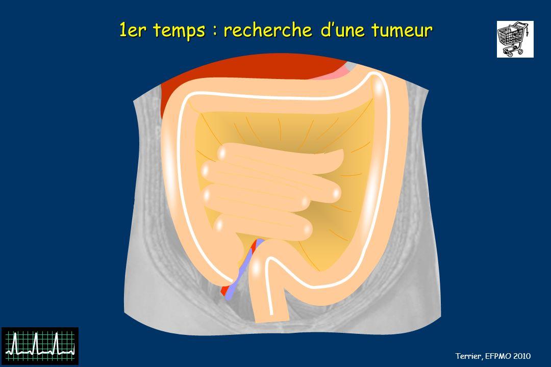 B Barrou, N Terrier, EFPMO 2010 1er temps : recherche dune tumeur