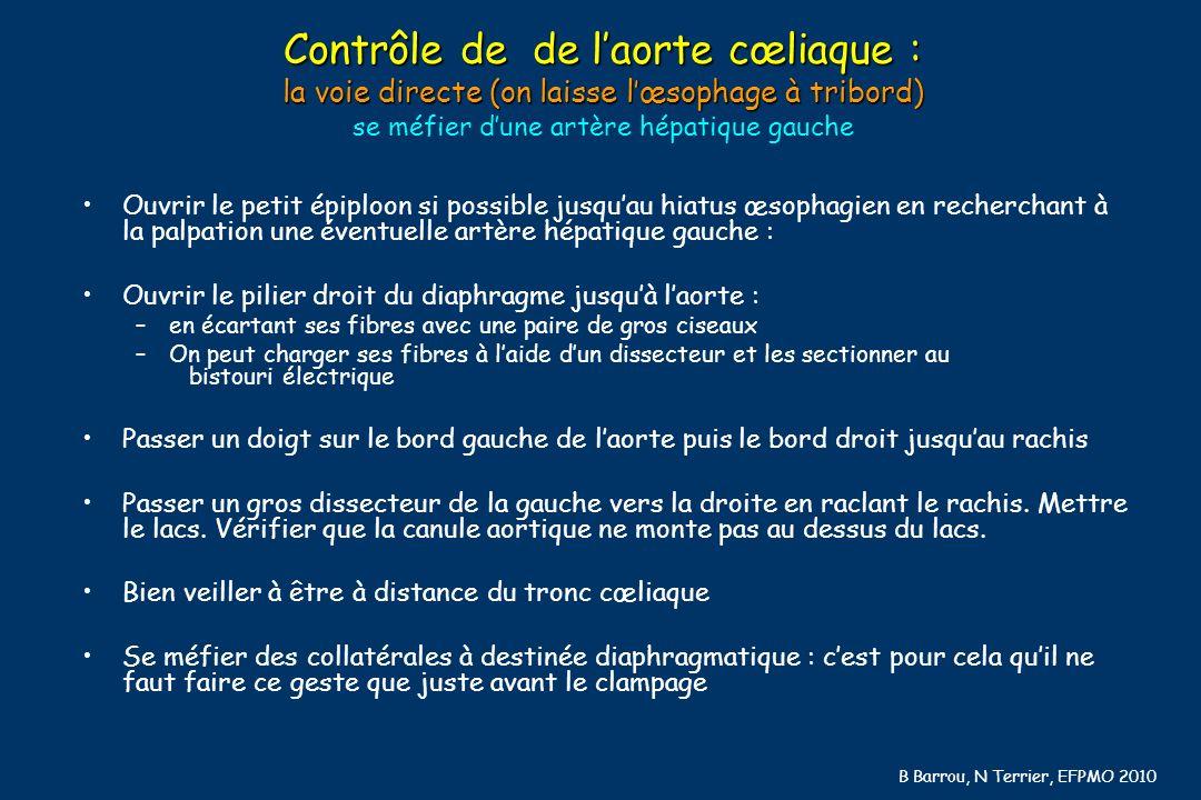 B Barrou, N Terrier, EFPMO 2010 Contrôle de de laorte cœliaque : la voie directe (on laisse lœsophage à tribord) Contrôle de de laorte cœliaque : la v