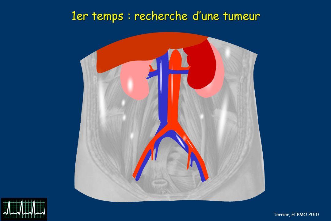 B Barrou, N Terrier, EFPMO 2010 Examen du foie Stéatose hépatique: hépatomégalie .